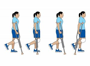 Walking With Crutches After An ACL Injury