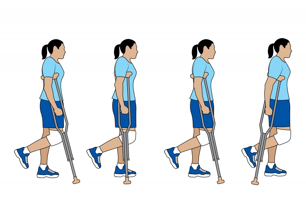 After ACL Surgery When Can I Walk? Walking With Two Crutches