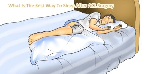 Best-Way-To-Sleep-After-ACL-Surgery
