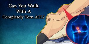 Can-You-Walk-With-A-Completely-Torn-ACL