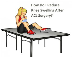 How Do I Reduce Knee Swelling After ACL Surgery