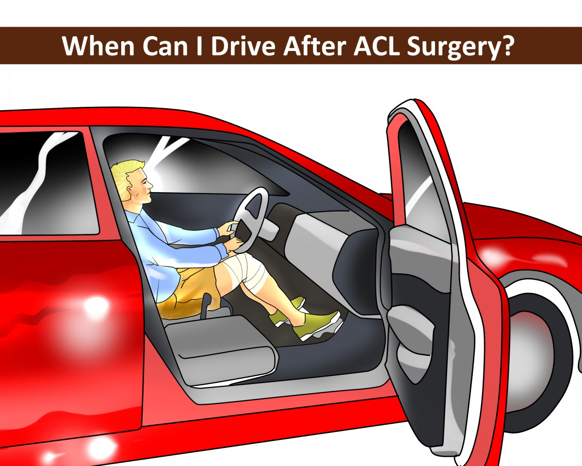Driving-After-ACL-Surgery